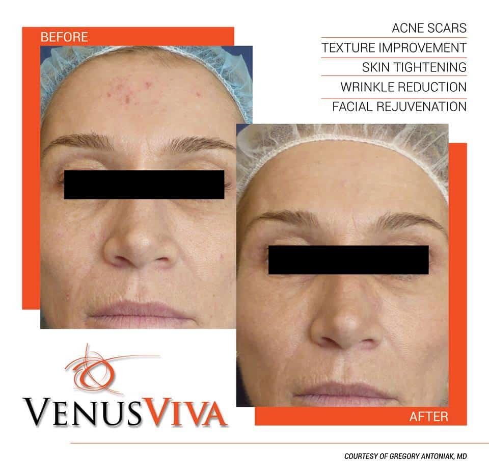 מיצוק העור - VENUS CONCEPT