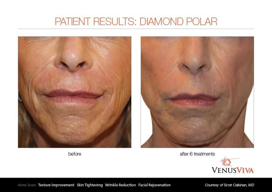 טיפולי פנים - VENUS CONCEPT