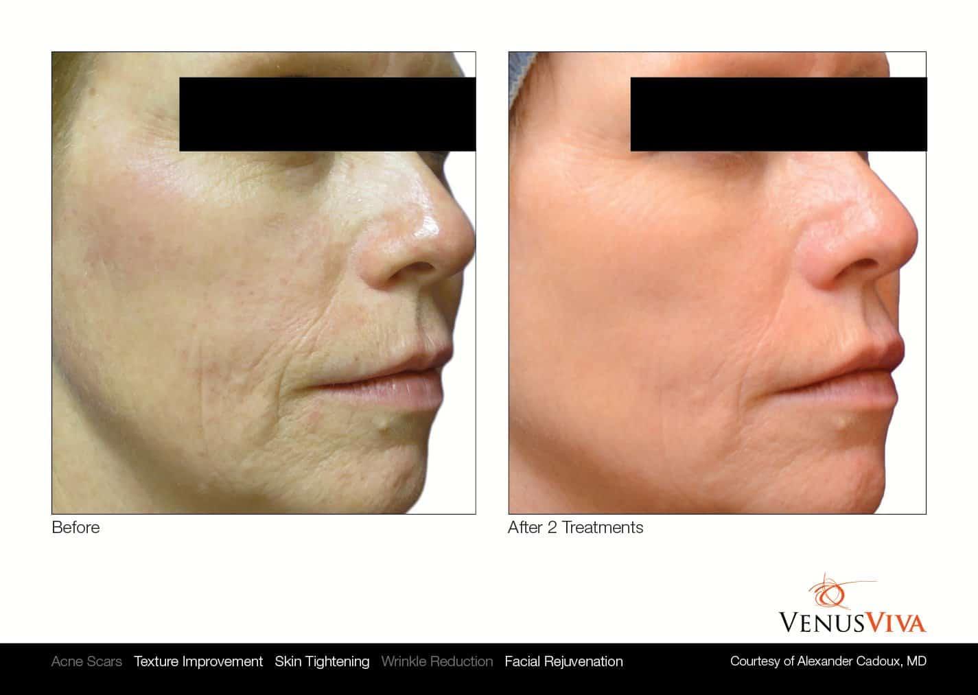 טיפולי אקנה - VENUS CONCEPT